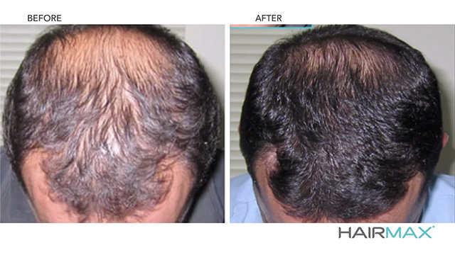 hairmax laserband 82 test avis